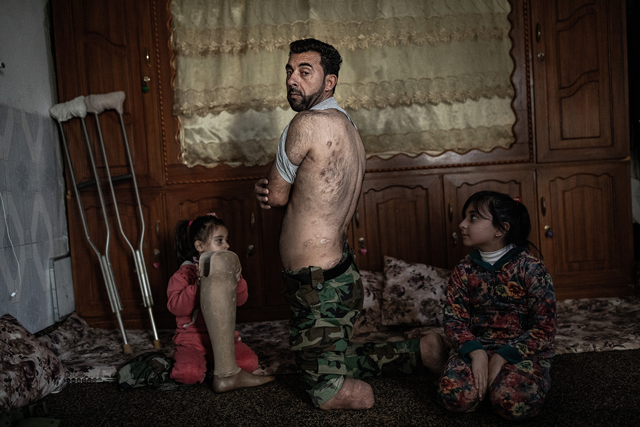 Photo of a Kurdish man and his two daughers in their home. The man has shrapnel scars and one leg amputated; one of the daughters holds his prosthesis.